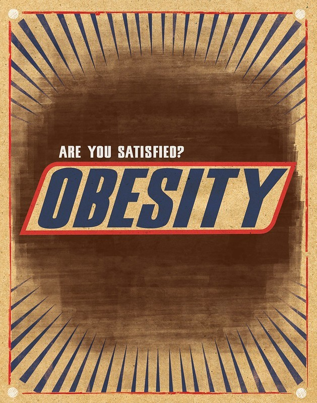 Obesity cause and solutions essay